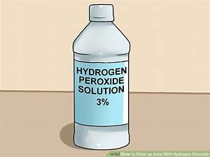 3 Ways To Clear Up Acne With Hydrogen Peroxide