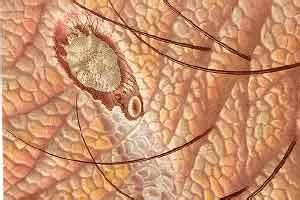 sarna en las personas  es causas sintomas