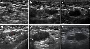Diagrams Of Aln At Ultrasound  A Normal Aln  B Suspicious