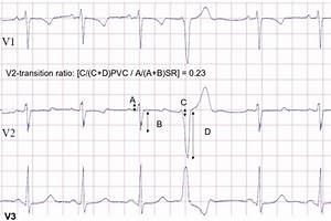 Precordial Leads V1 V2 And V3 Of Sinus Rhythm And A