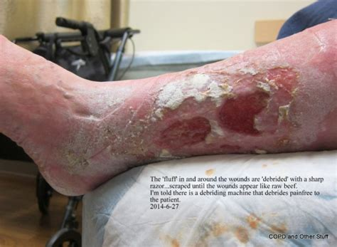 cellulitis copd   stuff