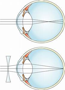 How Does A Concave Lens Cure Myopia