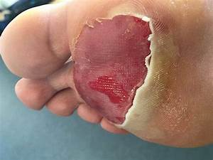 Fireman Runs Cardiff Half Marathon In Full Gear And Ends Up With Gigantic Blister