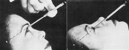 Image result for Lobotomy Pick