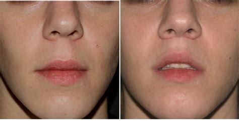 lip lift wikipedia