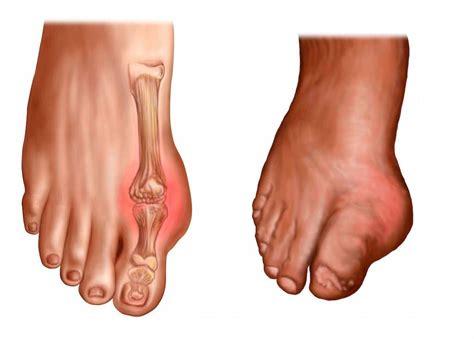 douleur au pied droit ou gauche et gonflement