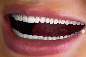 Instagram U2019s Algorithm Believes I Might Enjoy These Teeth