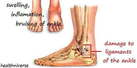 types  ankle sprains based  severity