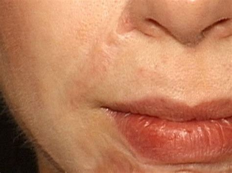 Laser Treatment Of Hypertrophic Scars