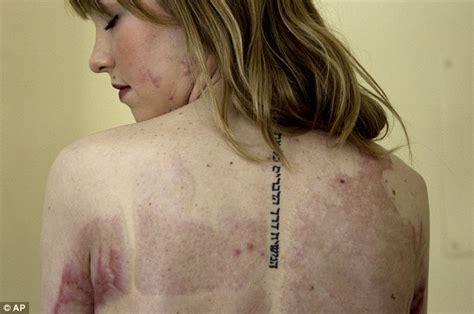 meet  angel faces  severely burned girls