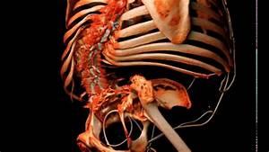 Spina Bifida Skeletal Anatomy