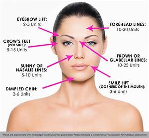 Botox U00ae Injections