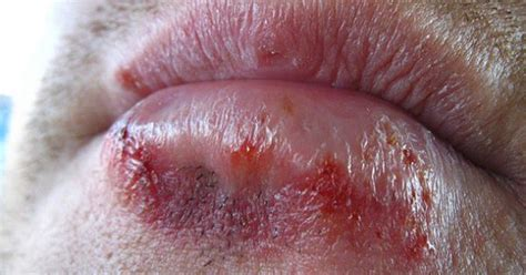 You Probably Have Herpes!