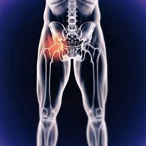 Joint Replacement  U2013 Worcester County Orthopedics