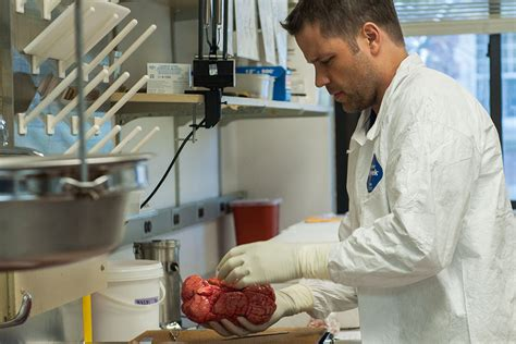 brain bank receives largest donation  manton