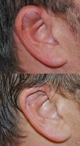 Ear Injury Treatment - Facial Trauma