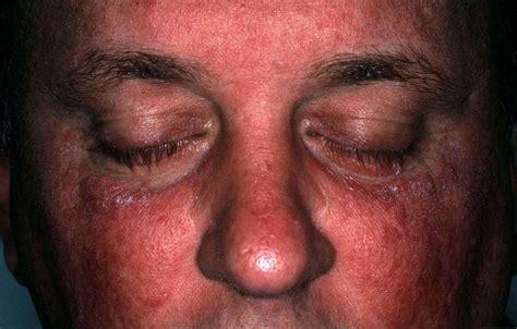 Vlekken huid schimmel