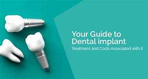 The Complete Guide To Dental Implant Treatment And Costs