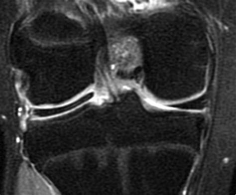 hypermobile lateral meniscus radsource