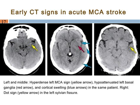 Manage Ischemic Stroke Pts. Reddit Signs. Plantar Fasciitis Signs Of Stroke. Contruction Signs Of Stroke. Campus Signs. Air Conditioner Signs. Safety Awareness Signs. Sand Signs. Toenail Signs Of Stroke