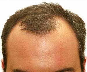 Options For Frontal Hair Loss Treatment