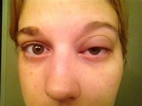 Swollen Eyes From Allergies