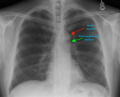Chest X Ray Interpretation A Structured Approach