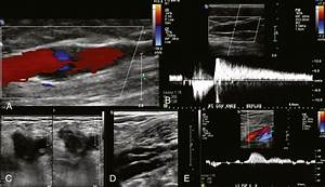 Ultrasonography For The Diagnosis Of Venous Disease