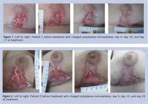 Bed Sore Break In Continuity Of Skin bed sore break in continuity of skin bedding sets