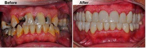 dentistry    concord ca smile gallery