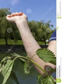 Stinging Nettle Allergic Reaction