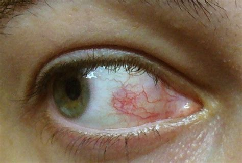 Herpes In The Eye Images Herpes Of The Eye Pictures Symptoms Treatment Causes