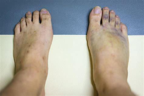 cosa causa  piedi viola il dito nella piaga