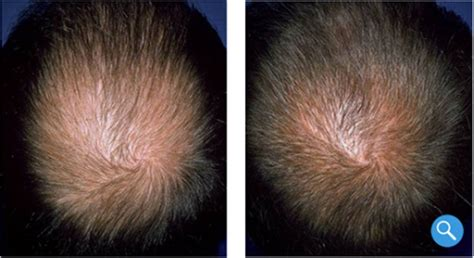 Nizoral Shedding by Which Hair Loss Products Are Supported By Science Dr