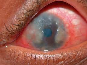 Child with severe limbal VKC. Note the marked conjunctival hyperaemia ... Conjunctivitis