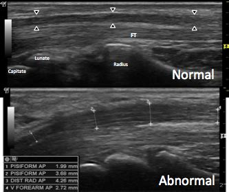 Musculoskeletal Sonography and Occupational Performance ...