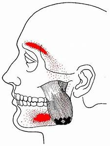 Masseter Trigger Points And Referred Pain Patterns