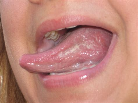 Ce La Vie Geographic Tongue