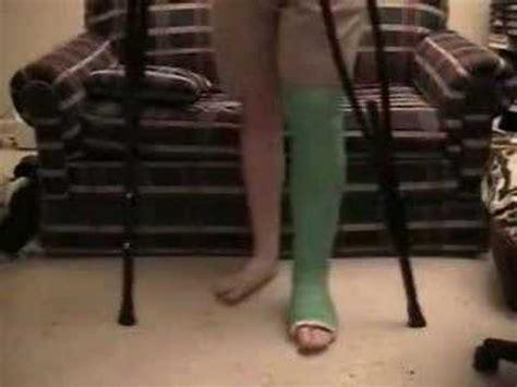 my green leg cast llc
