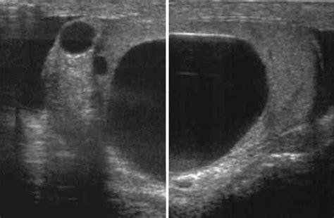 Testicular Cyst And Epididymal Cyst