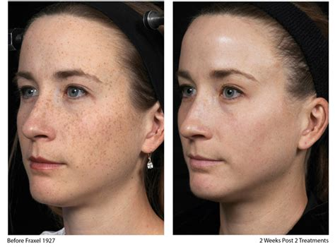 Skin laser treatment before and after