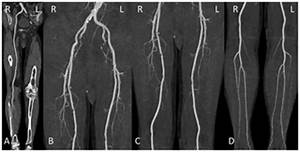 Image Quality And Radiation Dose Of Lower Extremity Ct