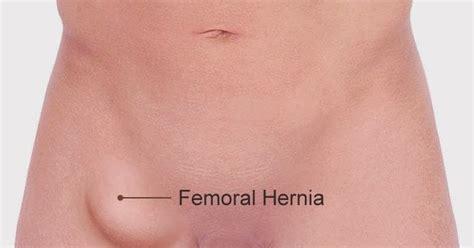 hernia symptoms hernia symptoms newhairstylesformen2014