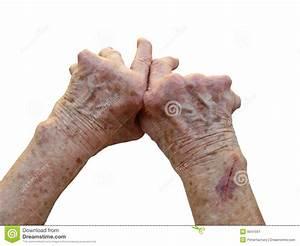 Artritis, temas de salud niams