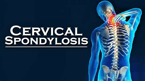 Cervical spondylosis and spondylitis