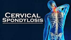 Cervical Spondylosis - An Ayurvedic Perspective