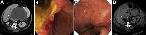 Drainage Of A Pancreatic Pseudocyst Via A Spontaneous Cyst