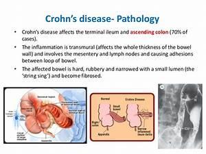 Ideal Cure...: Crohn's disease