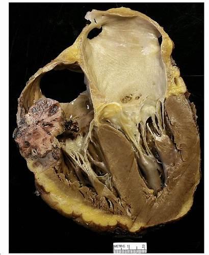Angiosarcoma Cardiac Tumor Atrium Right Approximately Diameter