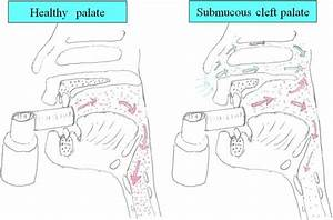 Submucous Cleft Palate